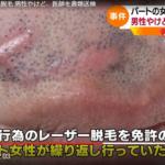 坂井宏朗医師の顔画像やSNS、病院名の特定か!?ヤバすぎレーザー脱毛で男性が大やけど!
